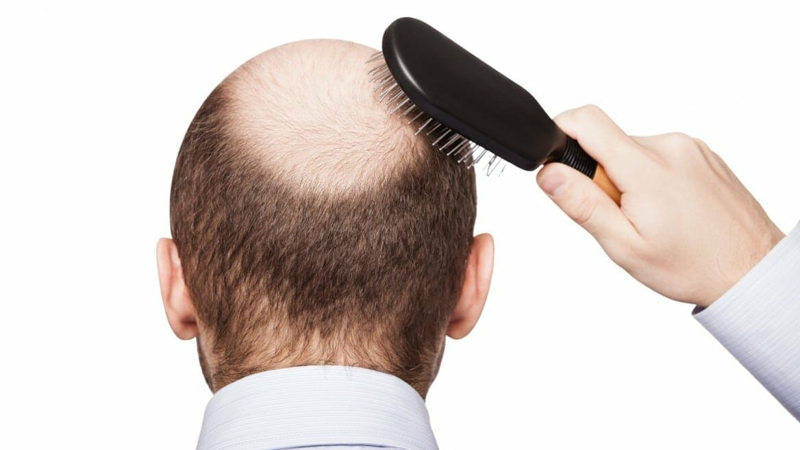 Your Diabolical Follicles: Treating Male Pattern Baldness